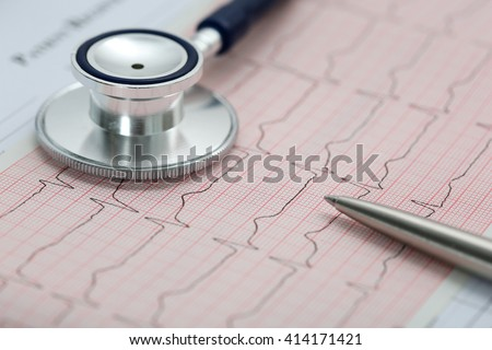 Stethoscope head and silver pen lying on cardiogram on clipboard pad. Cardio therapeutist assistance, physician make cardiac physical, pulse beat measure document, arrhythmia idea, pacemaker concept - stock photo