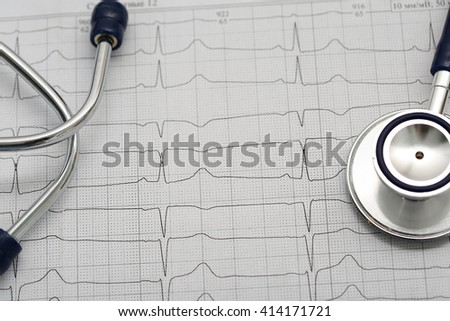 Stethoscope head lying on cardiogram on clipboard pad. Cardio therapeutist assistance, physician make cardiac physical, pulse beat measure document, arrhythmia idea, pacemaker, systole concept - stock photo