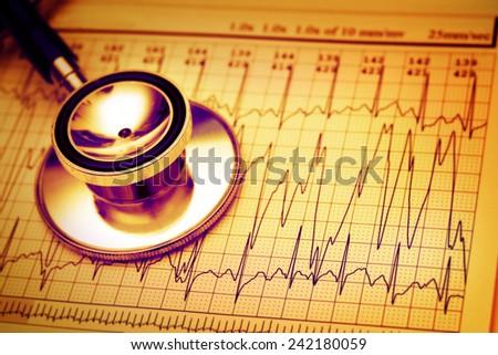 Stethoscope on a heart monitor printout - stock photo