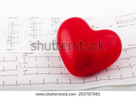 Stethoscope on an electrocardiogram (ECG) chart - stock photo