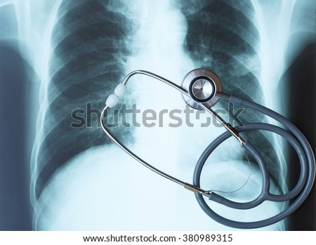 Stethoscope on chest x-ray image.Medical concept. - stock photo