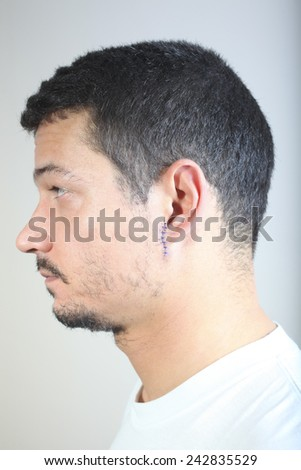 Stitched wounds after skin biopsy on the man's ear - stock photo