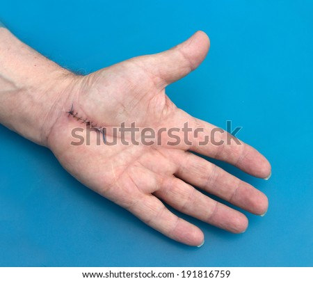 stitches after carpel tunnel operation - stock photo