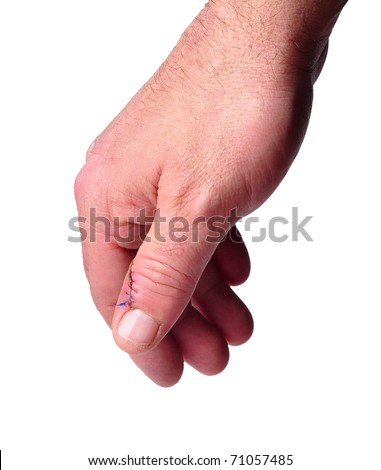 Stitches used to stitch up skin in a thumb of the right hand isolated on white - stock photo