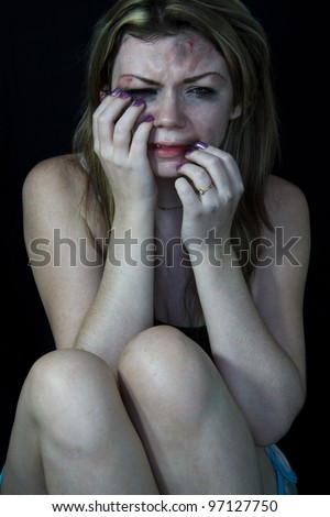 STOP Violence With Women, Scared and beaten white woman sitting in pain and crying - stock photo