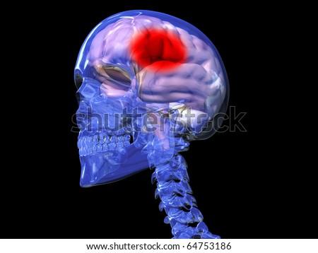 Stroke, Migraine, Pain - stock photo