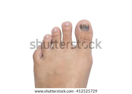 subungual hematoma blood blister beneath the toenail isolated on white background, selective focus (detailed close-up shot) - stock photo
