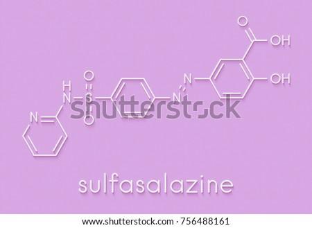 Sulfasalazine (Azulfidine) Ulcerative Colitis