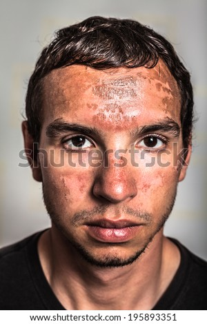 Sunburn skin peeling on male face caused by extended exposure on direct sun. - stock photo