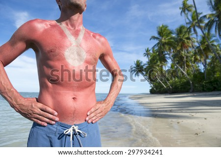 Sunburned athlete standing with outline of medal on empty Brazilian beach - stock photo