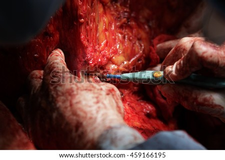 surgeon cuts the tissue using coagulator close-up