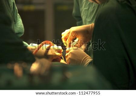 Surgery - stock photo