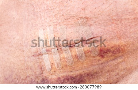 Surgical stitches, suture wound at abdomen - stock photo