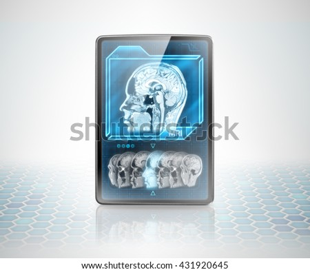 Tablet with cerebral scan on futuristic background (image is not 3D rendering) - stock photo