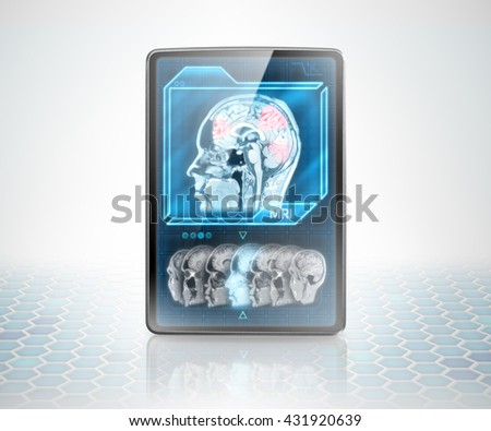 Tablet with scan of cerebral activity on futuristic background (image is not 3D rendering) - stock photo