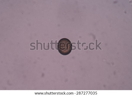 Taenia is a genus of tapeworm (a type of helminth) that includes some important parasites of livestock. - stock photo