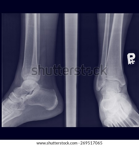 tearing of the joint capsule on authentic x-ray picture fracture fibula bone - stock photo