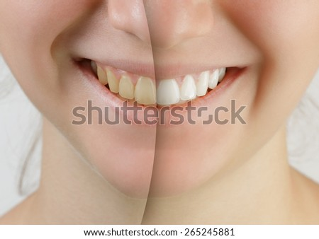 teen girl smile before and after teeth whitening - stock photo