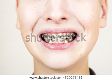 Teen with braces on his teeth. Orthodontics and bite correction.