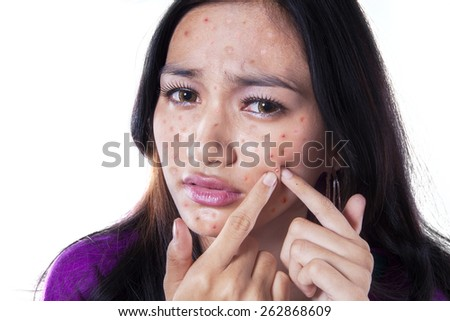Teenage girl removing pimple on her cheek by touching it with her fingers, isolated on white - stock photo