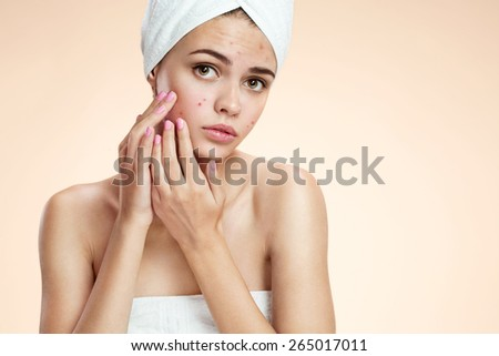 Teenage girl squeezing her pimples, removing pimple from her face.  Woman skin care concept / photos of ugly problem skin girl on beige background   - stock photo
