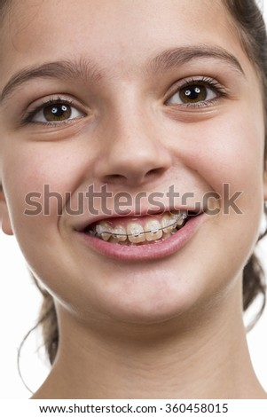 Teenage girl with braces on her teeth.