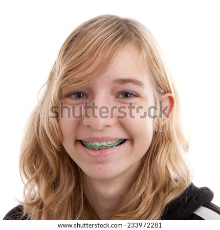 Teenage girl with braces on teeth over white background - stock photo