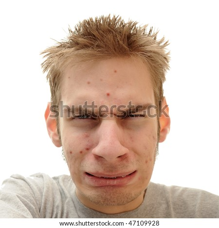 Teenage looks embarrassed and confused about the pimples that are showing up all over his face. - stock photo