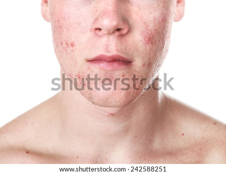 Teenager with Acne - stock photo