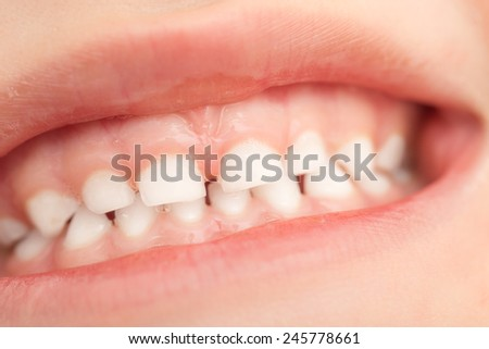 teeth in children. close-up - stock photo