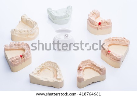 Teeth molds with dental floss on a bright white surface - stock photo