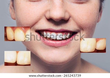 Teeth problem woman  smile mouth - stock photo