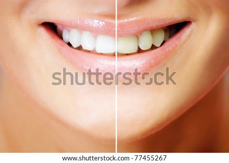 Teeth whitening , before and after comparison - stock photo