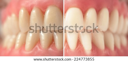 Teeth whitening, before and after shots - stock photo