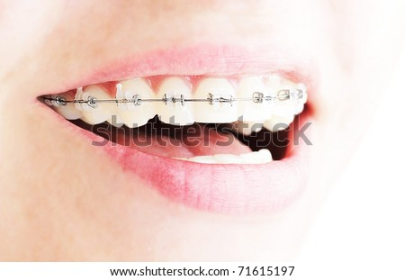 Teeth with braces, beautiful female smile, dental care concept - stock photo