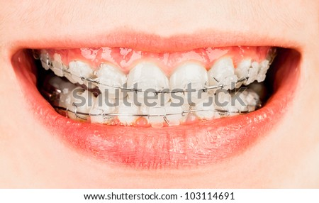 Teeth with braces, boy ...