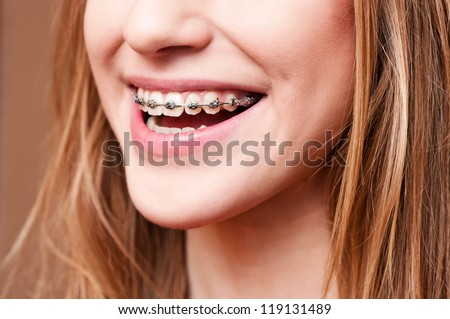 teeth with braces, close up - stock photo
