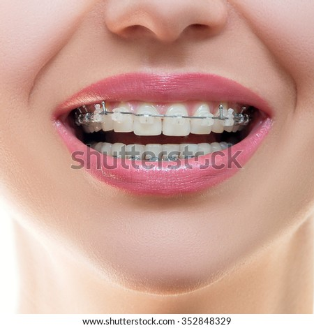 Teeth with Braces, Dental Care concept, front view. Smile with Sapphire braces. The Gap between the Teeth. Orthodontic treatment.