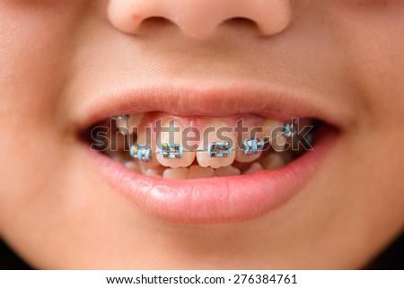 teeth with braces of teen girl - stock photo