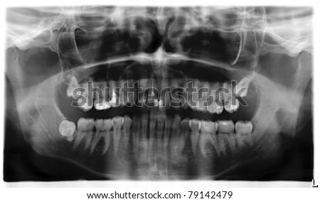 Teeth x-ray panorama - stock photo