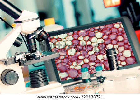 Test biopsy c on microscope for cancer cells - stock photo
