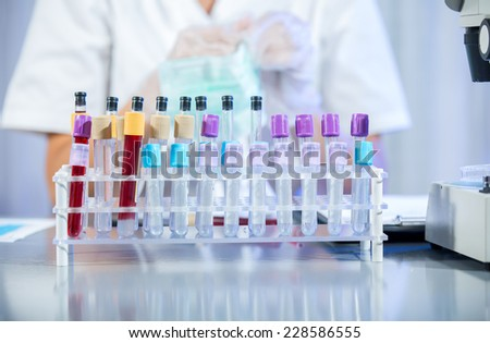 Test tubes in the laboratory - selective focus - stock photo