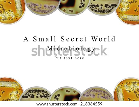 """The background of powerpoint presentation microbiology science  show about the bacteria """"Actinomycetes"""" streak on starch agar plate. Clear zone indicated enzyme production degrading starch. - stock photo"""