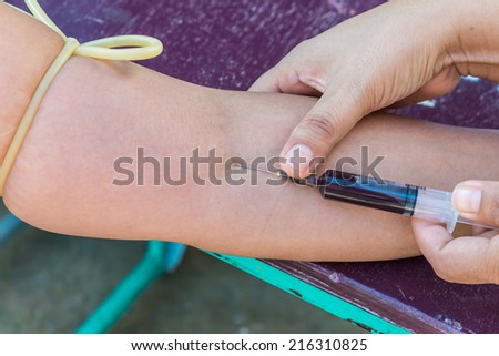 The blood sample is taken - stock photo