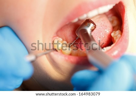 The confident dentist drilling the patient's teeth - stock photo