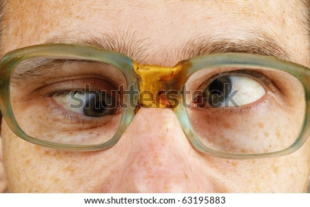 The cross-eyed person in old-fashioned spectacles close up - stock photo