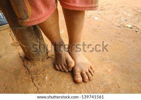 The Feet of a Child Living in Poverty in Laos