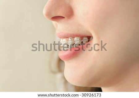 The girl smiles with braces system. - stock photo