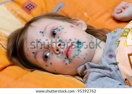 The girl suffers chickenpox - stock photo