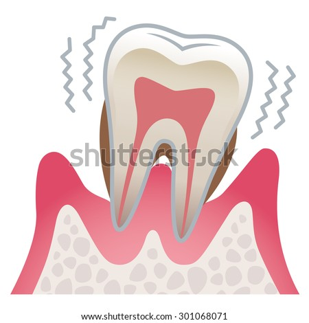the illustration of the tooth